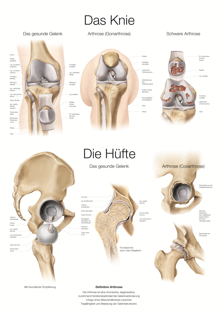 Charmant Quer Anatomie Definition Galerie - Anatomie und Physiologie ...